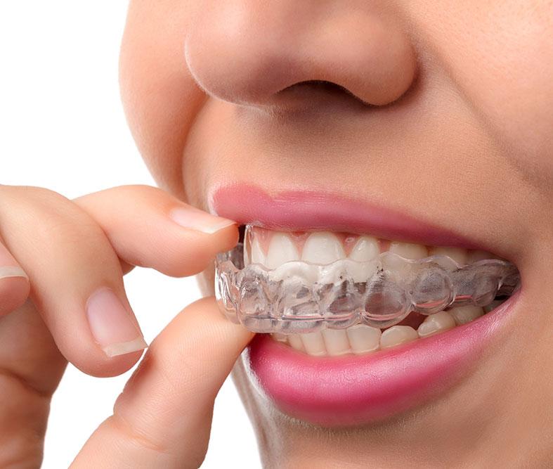 Ortodoncia Geniova